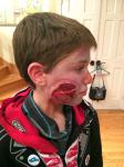 Aidan hatte einen Unfall mit dem Messer